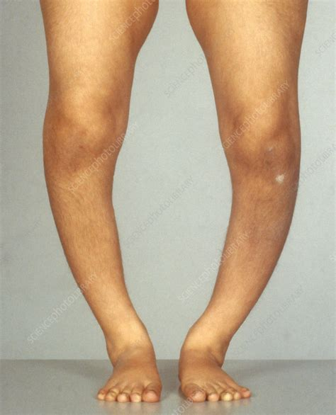 Rickets - Stock Image C009/4075 - Science Photo Library