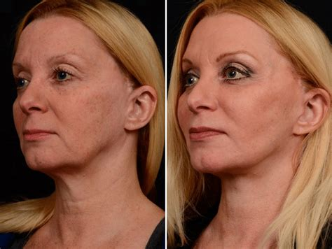Jowls / Jawline Sag Before and After Photos New Jersey