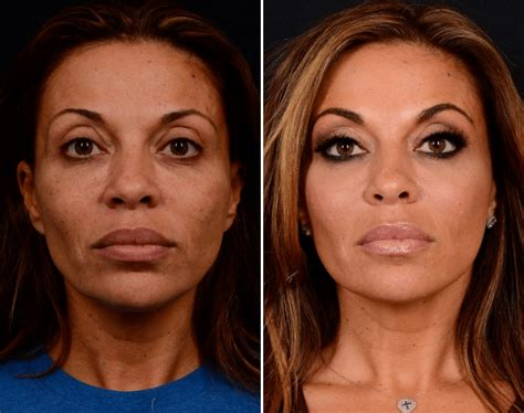 Lower Blepharoplasty Before and After Photos New Jersey