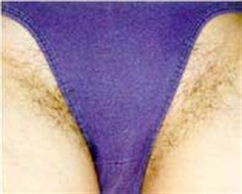 Laser Hair Removal Before & After Female Bikini Photos